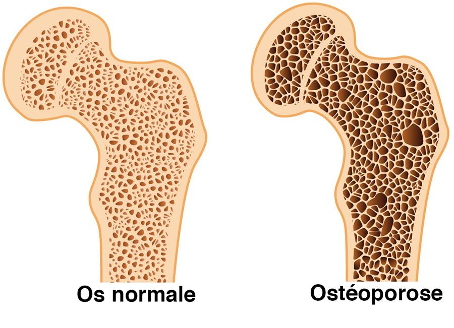 symptoms of osteoarthritis and rheumatoid arthritis